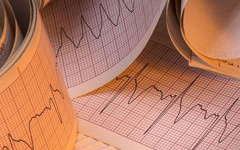 Cardiac Care: Advanced ECG Interpretation 2016