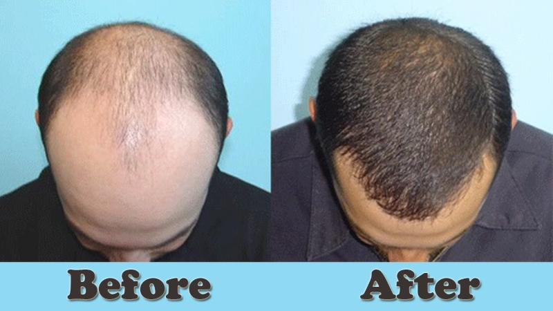 PRP Treatment For Hair Loss Results