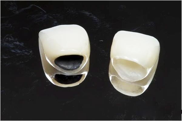 Mài răng hô bọc sứ răng hết hô - thẩm mỹ tối đa - tiết kiệm chi phí 1