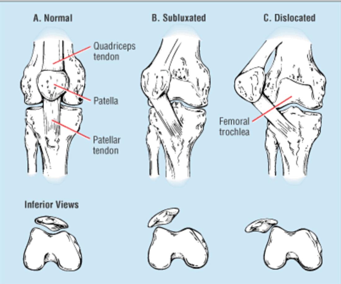 Patella Instability   Brisbane Knee and Shoulder Clinic   Dr  MacgroartyBrisbane Knee and Shoulder Clinic