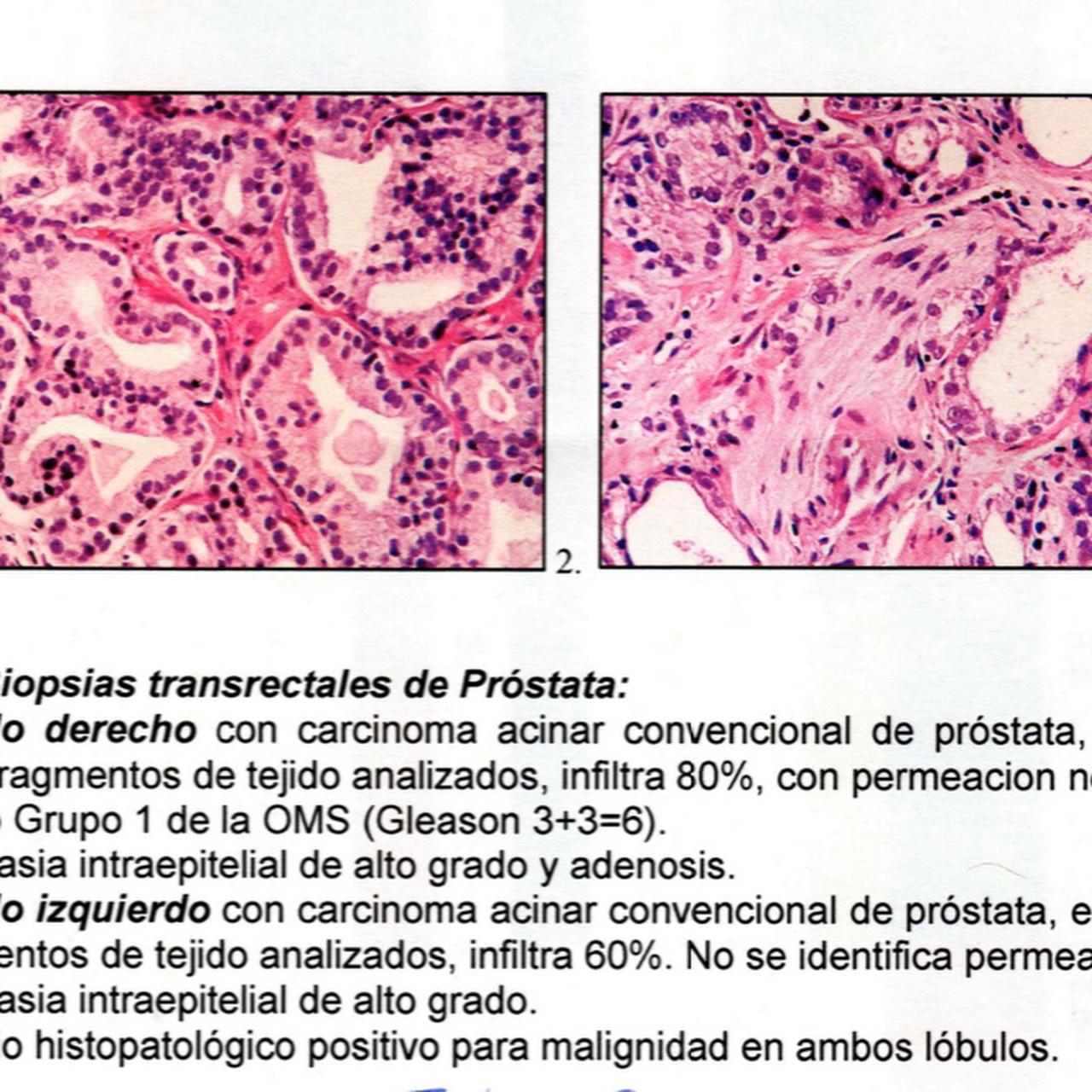 imágenes de cirugía de próstata con láser arezzo