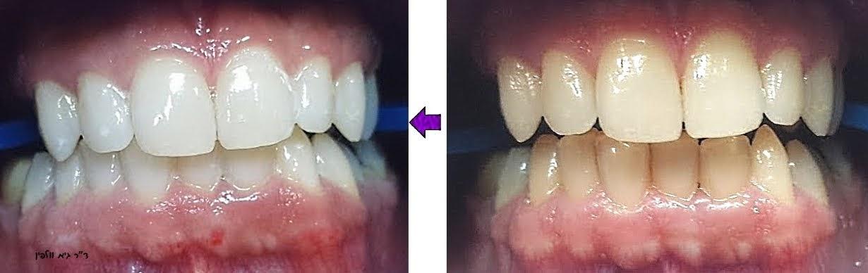 """איך להלבין שיניים שהצהיבו, ד""""ר גיא וולפין - אסתטיקה דנטלית ושיקום הפה"""