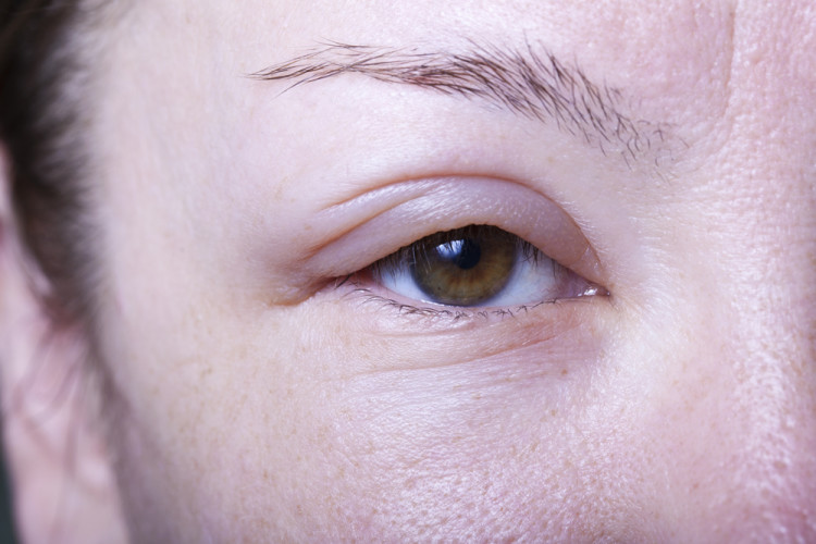 治る で 目 時間 腫れ 何 の
