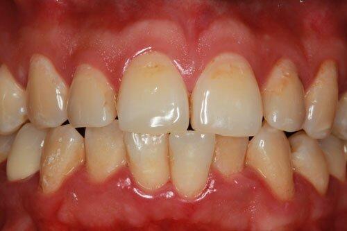 https://www.efp.org/fileadmin/uploads/patients_area/Photos/gingivitis.jpg
