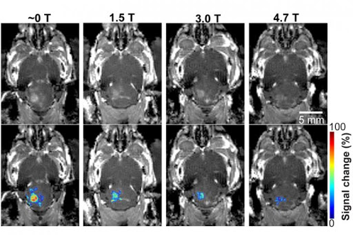 Magnetic field from MRI affects focused-ultrasound-mediated blood-brain barrier