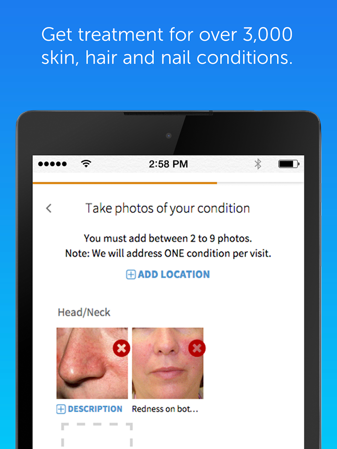 DermatologistOnCall- screenshot