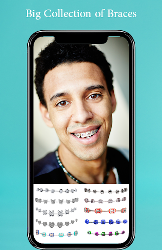 Braces Photo Editor 2019 screenshots 1