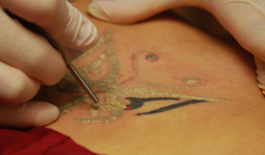Tattoo-Removal.jpg