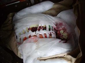 Photo: Das waren am Ostermontag, dem Tag des Abbaus, die Überreste des OP-Torsos, wie er dann auch in den Müll gewandert ist.