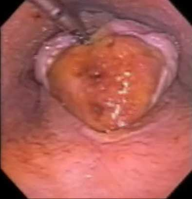 After application of local anesthesia, the epiglottic cartilage has been lifted showing the extent of the ulcer/granuloma.