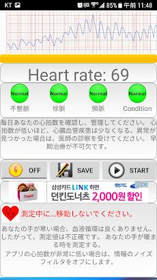 心臓 診断(不整脈)のおすすめ画像2