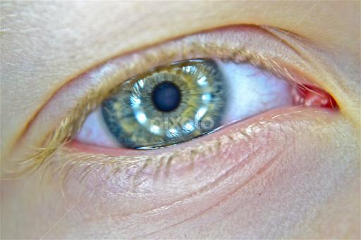 Ocular albinism asian dating
