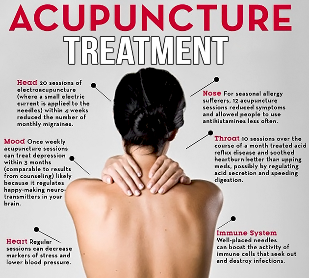 Acupuncture treatment in lahore
