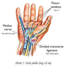 Hội chứng ống cổ tay và cách chữa không cần phẫu thuật