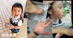 傳真社揭臨臨就讀幼稚園 早於死前4個月已發現瘀傷並紀錄