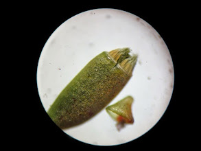 Photo: Plagiothecium moss capsule under microscope. Spores just emerging.  photo by Phoebe Goit