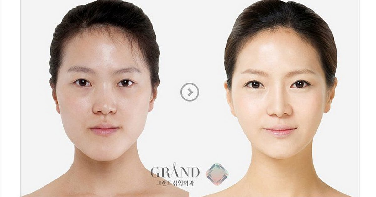 Netizens express shame over growing Korean plastic surgery culture