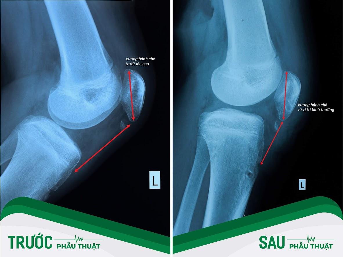 Hình ảnh phim X-quang trước và sau phẫu thuật