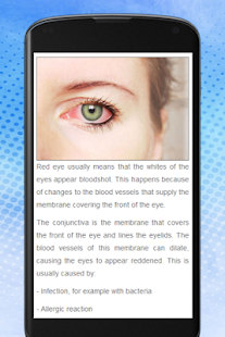 How to Get Rid Of Red Eye - náhled