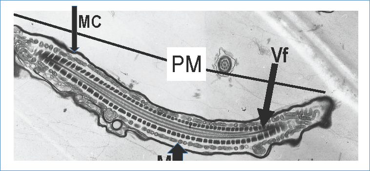 Electronic photomicrography of transmission. Middle part (PM) or main part electron-dense, cell membrane (MC), mitochondria (M), and fibrous sheath (VF). Uranyl contrast and lead citrate technique. Zoom in 7 000x.