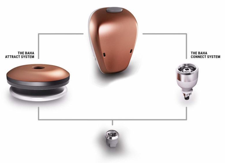 The Cochlear™ Baha® 5 System   Baha