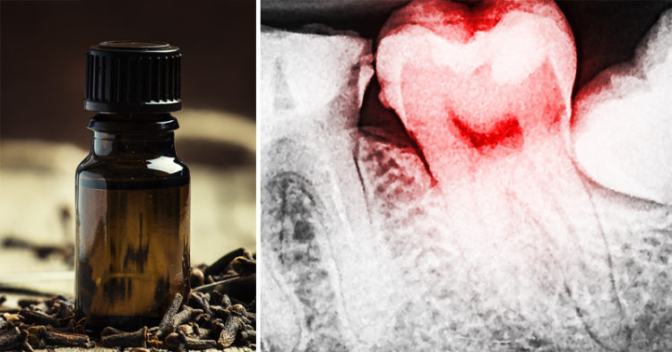 Clove Oil: 7 Uses & Benefits