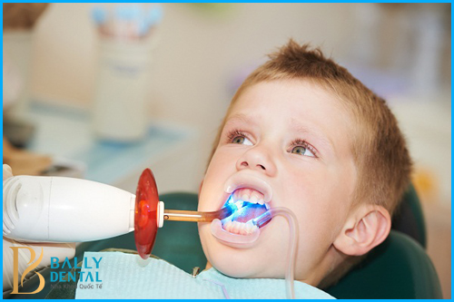 Chữa tủy răng mất bao lâu thời gian mới xong - Nha Khoa Bally