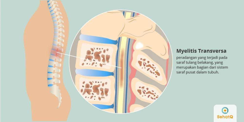 https://cms.sehatq.com/public/img/disease_img/myelitis-transversa-1552470039.jpg