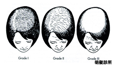 女性掉髮分級 Ludwig Classification of Female Pattern Baldness