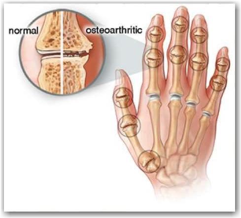 Başparmak Taban Eklemi Osteoartriti | eftalgudemez.com