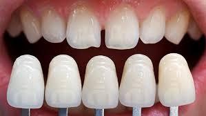 Bọc răng sứ cho răng thưa khắc phục thưa hở hiệu quả