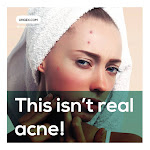THAT ISN'T REALLY ACNE!