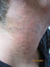 Photo: Pre 9th Laser Tattoo Removal Treatment at Las Vegas Dermatology