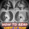 Guide to Interpretation of CT chest icon