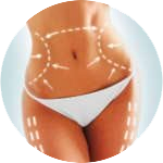 Body Lift at Allure Surgery
