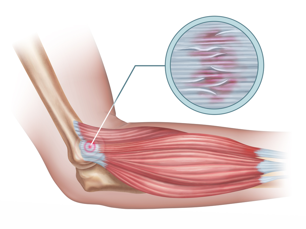 Tennis Elbow Causes and Treatment