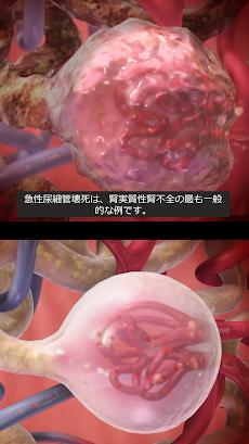 生理学と病理学:生体プロセスと疾患のおすすめ画像3