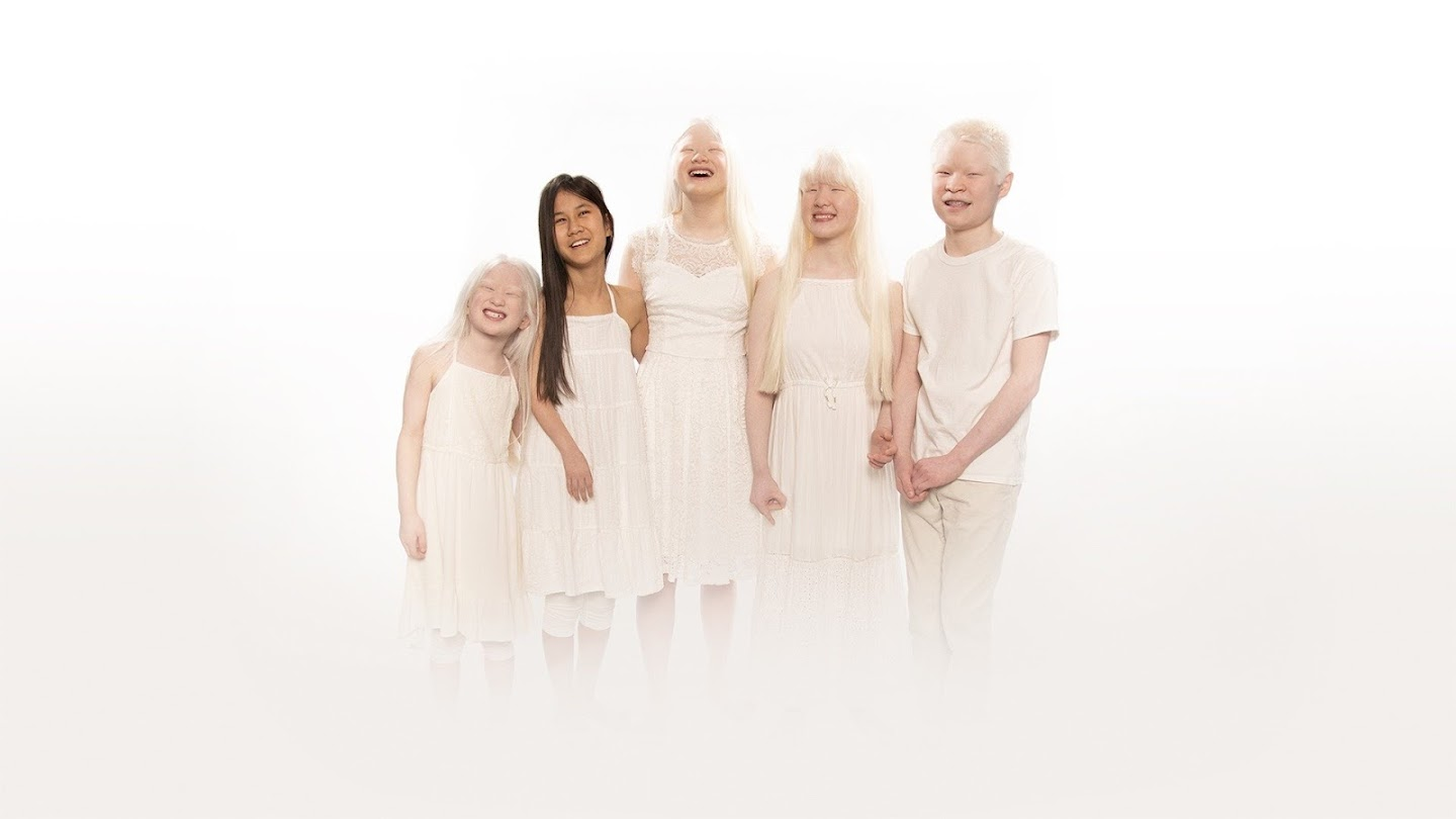 Watch Born With Albinism live