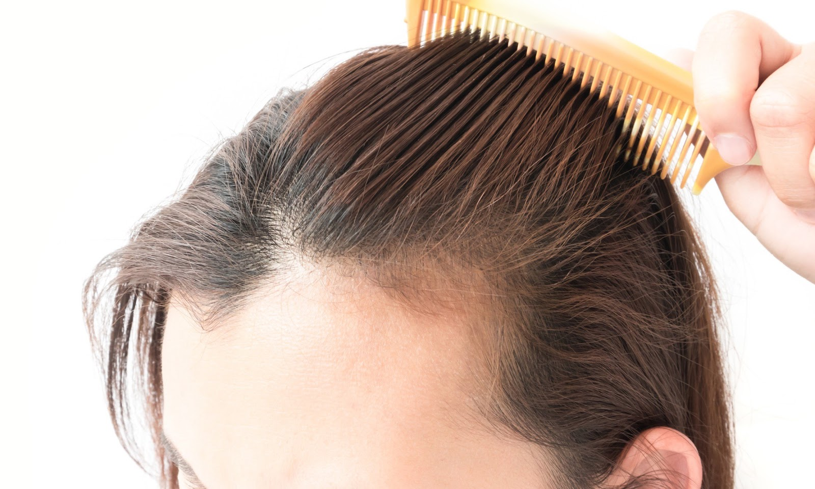 best treatment for Hair loss in Hyderabad, best Hair loss dermatologist near me