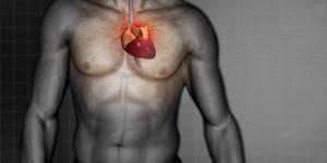 Resultado de imagen para infarto