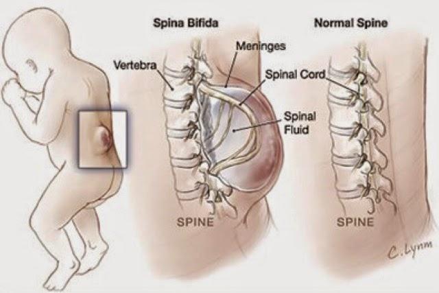 spina bifida-atasi dengan pengambilan bcomplex shaklee