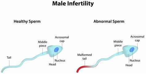 Male infertility specialists in Hyderabad, male reproductive center near Manikonda