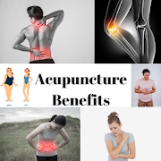 ACUPUNCTURE BENEFITS - ACHIEVING BETTER HEALTH