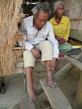 Photo: Nha Oum and his landmine injuries