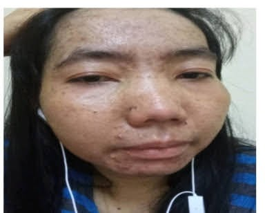 Ilegal Trafficking : TKW Asal Karawang Menderita Sakit, Teraniaya, Tersiksa Minta Pulang Dipersulit