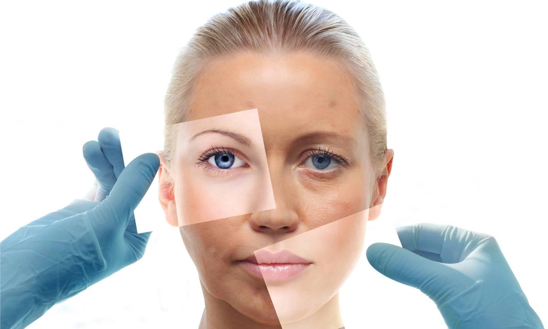 Pigmentvlekken behandelen: laser, peeling, huidproducten. Botox en fillers Bilzen, Hasselt. Dr. Charlotte Nelissen