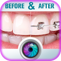 Teeth Braces Before and After icon