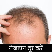 Hair Loss roke