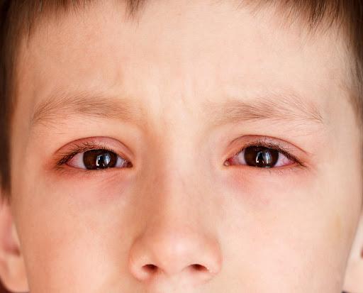Cảnh báo bệnh đau mắt đỏ đang lây lan nhanh chóng ngày hè