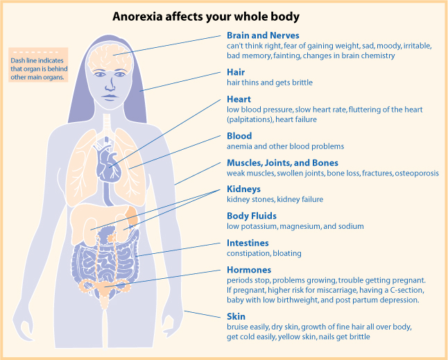 graphic on how Anorexia affects your whole body